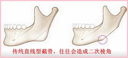 传统截骨手术