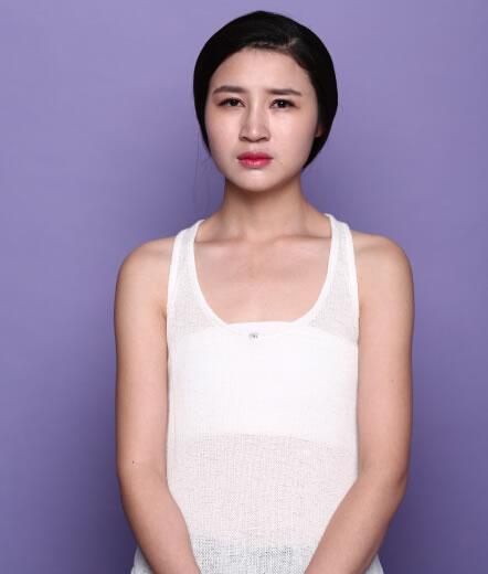 长沙雅美假体隆胸案例