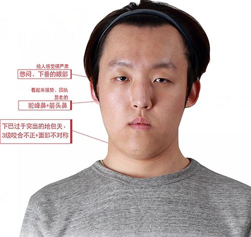 双鄂手术 面部提升 鼻整形