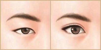 兰州时光双眼皮手术
