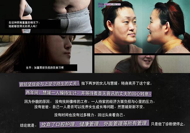 吸脂术 面部轮廓 脂肪填充