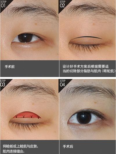动态双眼皮手术方法