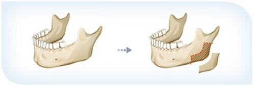 武汉美立方下颌角整形