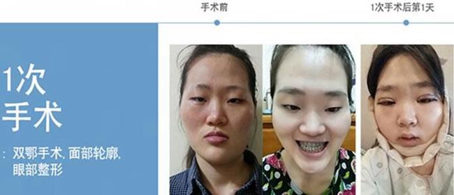 眼鼻整形 面部轮廓 自体脂肪