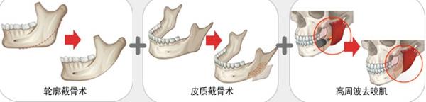 轮廓截骨术 + 皮质截骨术 + 高周波去咬肌