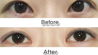 韩国一见整形外科双眼皮修复手术案例