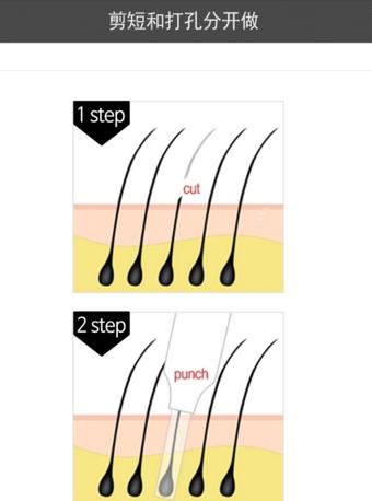 普通植发手术