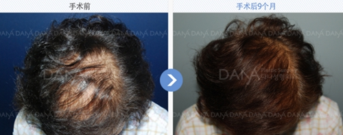 韩国多娜整形外科毛发移植案例