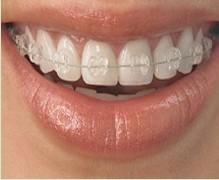 深圳富华隐形牙齿矫正优惠