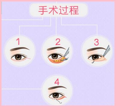 宜昌中爱去眼袋方法