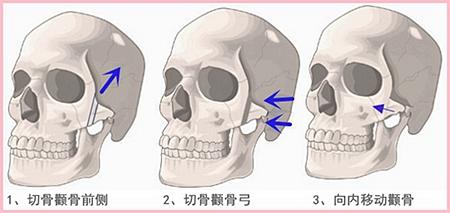 汕头曙光颧骨整形