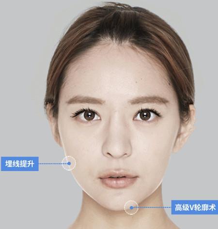 面部轮廓整形手术方案