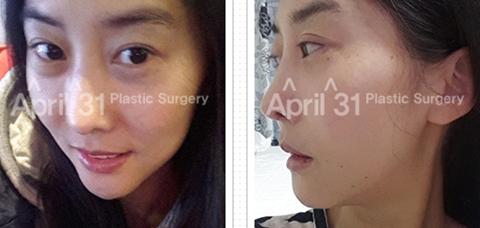 4月31日整形医院鼻修复案例