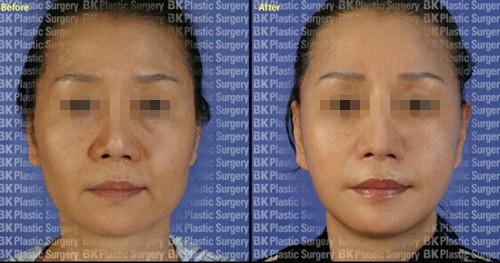 韩国BK整形医院拉皮手术案例