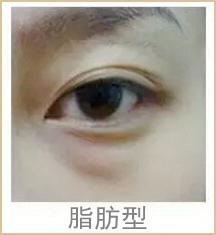 脂肪型眼袋