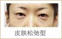 松弛型眼袋