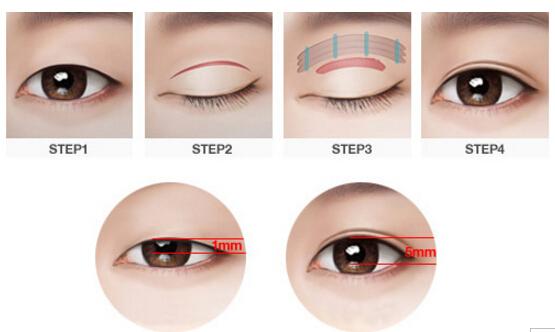 浙江衢化韩式双眼皮手术
