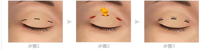 东阳天鹅湖韩式双眼皮