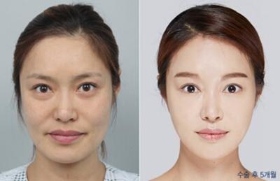 韩国DA整形医院面部提升案例
