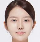 韩国DA整形医院双颚手术案例