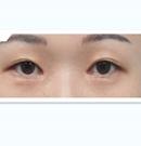 韩国DA整形医院双眼皮修复案例