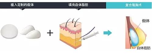 韩国TL整形医院的复合隆胸术有什么作用呢?