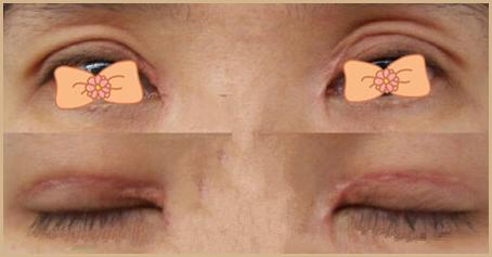 金华双眼皮术后疤痕明显