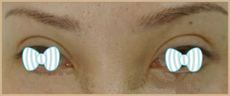 金华双眼皮术后双眼皮过宽
