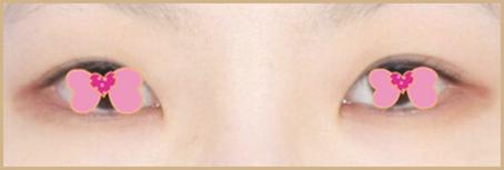 金华双眼皮术后双眼消失