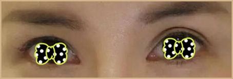 金华双眼皮术后双眼皮不对称