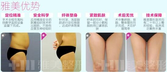 雅美吸脂减肥案例