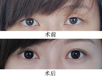 双眼皮手术案例