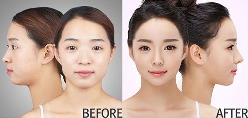 韩国原辰自体脂肪移植案例