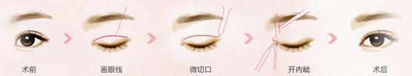 成都素美韩式双眼皮