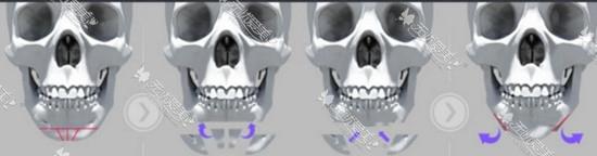 骨组织长度延长术