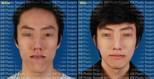 韩国bk整形医院双颚手术案例