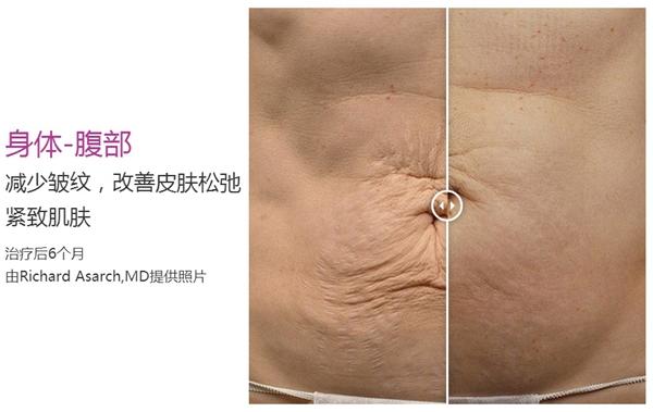 郑州东方整形贺洁院长热玛吉妊娠纹除皱