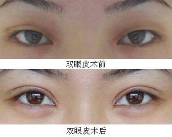 呼和浩特大韩韩式双眼皮手术案例