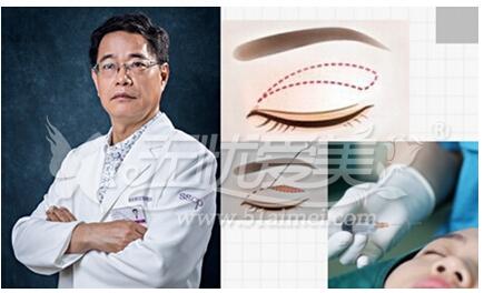 刘风卓独创双眼皮修复技术