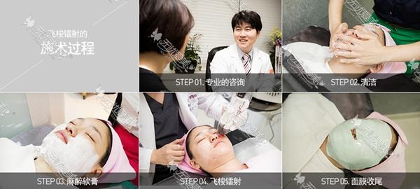 巴诺巴奇疤痕治疗优势
