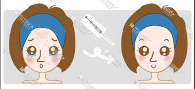 玻尿酸注射