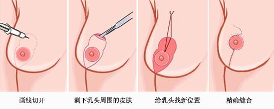 商丘海燕整形乳房下垂矫正