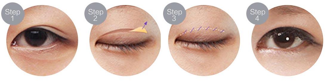 汕头华美双眼皮手术过程