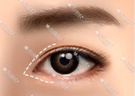 电眼开内眼角