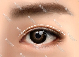 电眼双眼皮