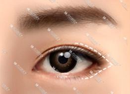电眼开外眼角
