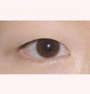 韩国清潭第一整形医院眼部整形对比案例