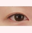 韩国清潭整形医院眼部整形对比案例