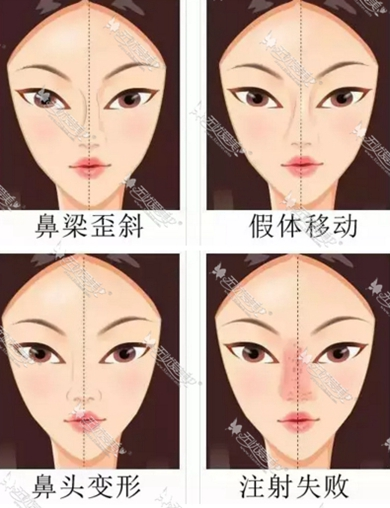 鼻整形失败类型