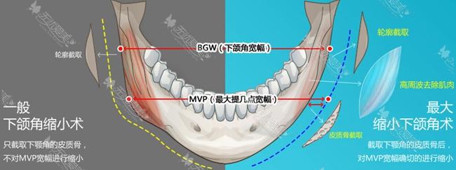 一般下颌角手术和mvp下颌角手术对比